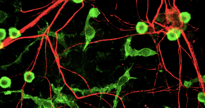 Mixed rat brain cultures stained for coronin 1a, found in microglia here in green, and alpha-internexin, in red, found in neuronal processes. Credit: Wikimedia Commons/ EnCor Biotechnology Inc./GerryShaw