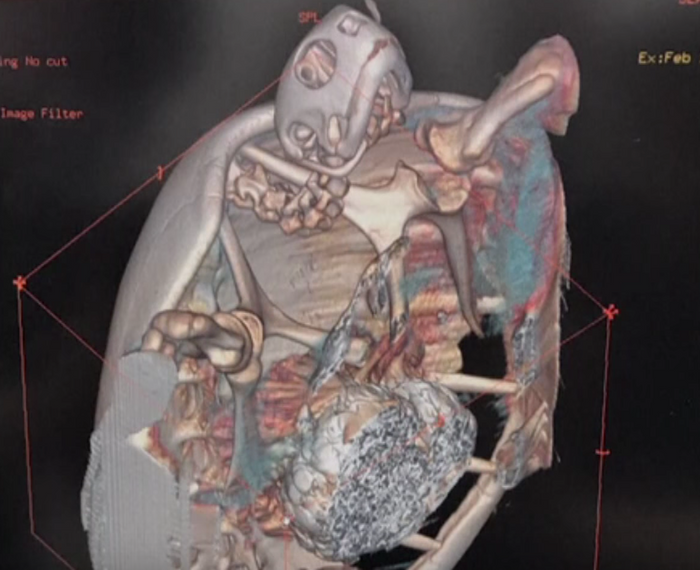 The CT scan results reveal the clump of coins in the animal's stomach.