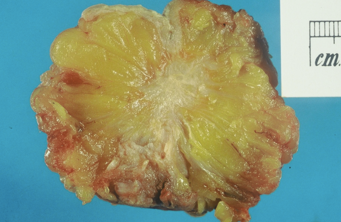 Excised human breast tissue, showing a stellate area of cancer 2cm in diameter. The lesion could be felt clinically as a hard mobile lump, not attached to skin or chest wall. The histology was that of a moderately well differentiated duct carcinoma / Credit: Wikimedia Commons Author: John Hayman