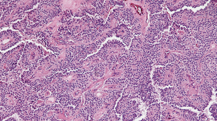 Scientists may have found a new avenue for the development of treatments for solid cancers, like this solid pseudopapillary tumor of the pancreas / Credit: Wikimedia Commons