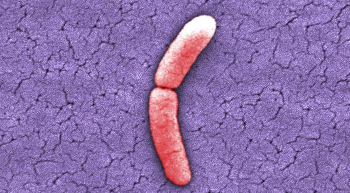 15000X, colorized scanning electron micrograph (SEM) of Salmonella typhimurium bacterium / Credit:CDC/ Bette Jensen