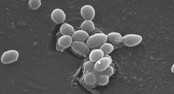 Scanning Electron Micrograph of Enterococcus faecalis / Credit: Janice Haney Carr/CDC