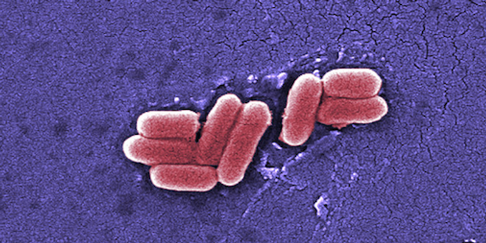Scanning electron micrograph of E. coli / Image credit: Public Domain Files