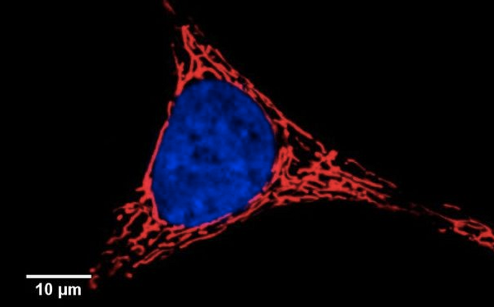 Confocal image of living HeLa cells. Mitochondria are stained in red / Wikimedia Commons/8x57is