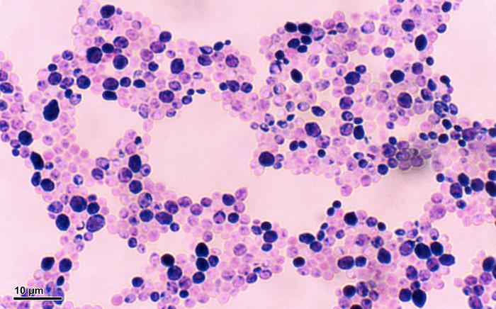 Candida albicans / Credit: Wikimedia / Doc. RNDr. Josef Reischig, CSc.