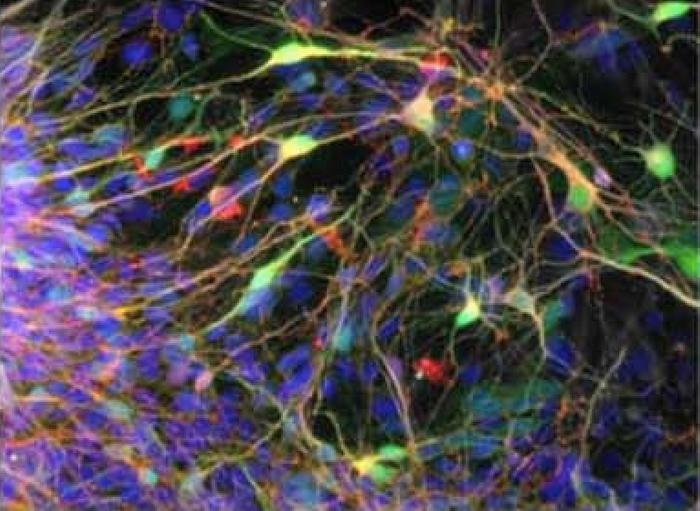 Human iPSC-derived neurons / Credit: eLife/Marchetto et al 2019