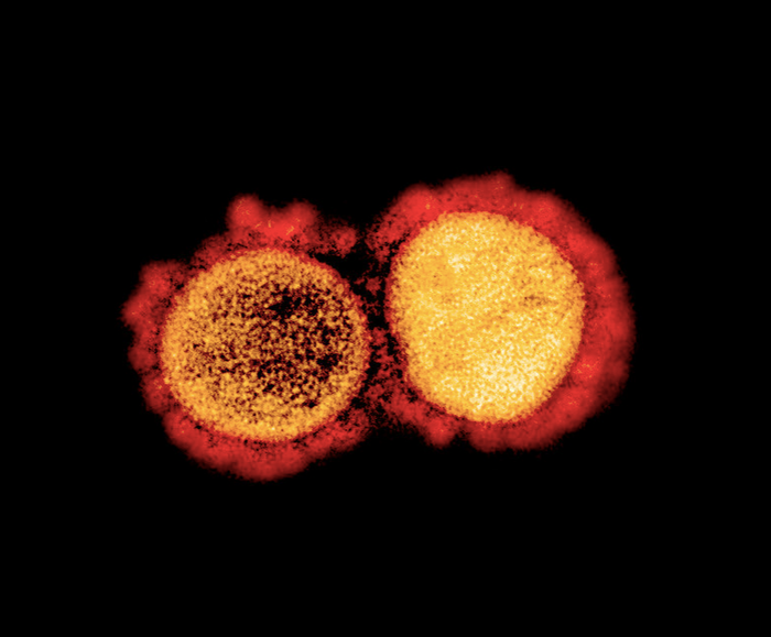 Transmission electron micrograph of SARS-CoV-2 virus particles, isolated from a patient. Image captured and color-enhanced at the NIAID Integrated Research Facility (IRF) in Fort Detrick, Maryland. / Credit: NIAID