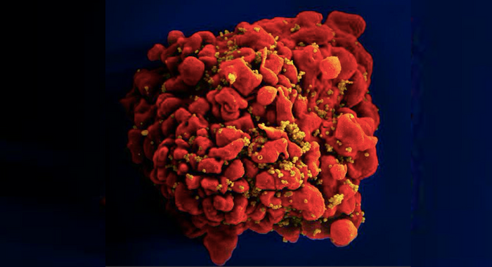 An SEM image of a single, red-colored, H9-T cell infected by numerous, spheroid shaped, mustard-colored human immunodeficiency virus (HIV) particles, seen attached to the cell's surface membrane./ Credit: National Institute of Allergy and Infectious Diseases (NIAID)