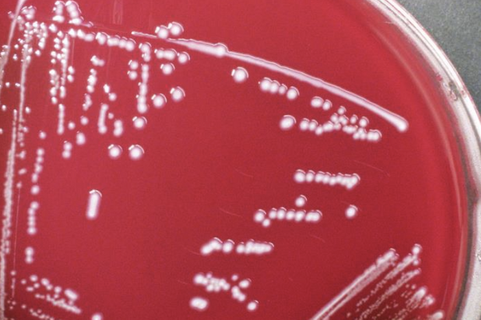 Paenibacillus macerans bacteria cultured on sheep blood agar medium,/ Credit: CDC/ Todd Parker, Ph.D., Assoc Director for Laboratory Science, Div of Preparedness and Emerging Infections at CDC