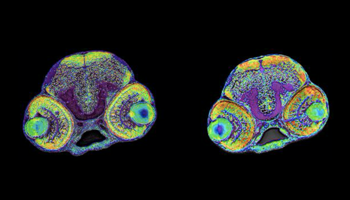 The picture shows the brain of a normal zebrafish larvae (left) and a larvae with microcephaly (right). / Credit: Assist.Prof. Canan Doganli, University of Copenhagen
