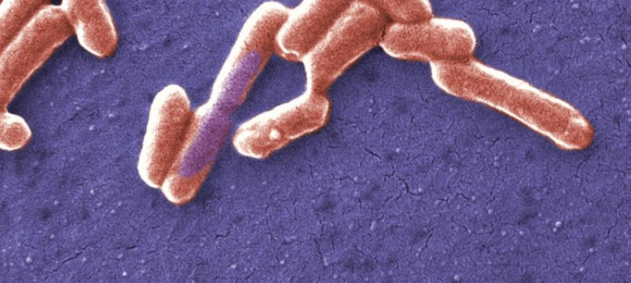 Cropped from a Public domain image by Janice Haney Carr, National Escherichia, Shigella, Vibrio Reference Unit at CDC, USCDCP