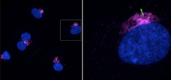 Primary cilia are seen on human LECs in this image by Paulson et al Front. Cell Dev. Biol., 14 May 2021, the ciliary marker ARL13b (green), DNA (blue) IFT20 (purple)
