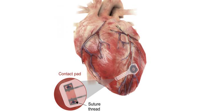 An illustration of the transient pacemaker mounted on myocardial tissue./ Credit: Northwestern University/George Washington University
