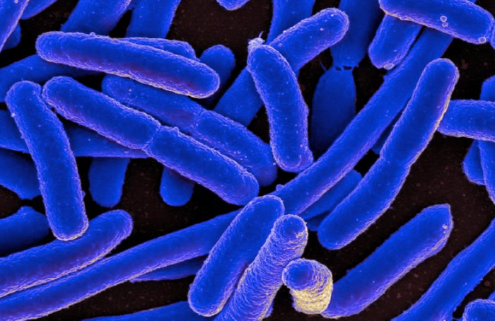 An SEM depicting Escherichia coli grown in a culture and attached to a coverslip / Credit: National Institute of Allergy and Infectious Diseases (NIAID)
