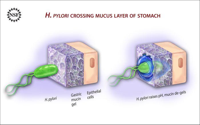 H. pylori burrows through stomach mucous.