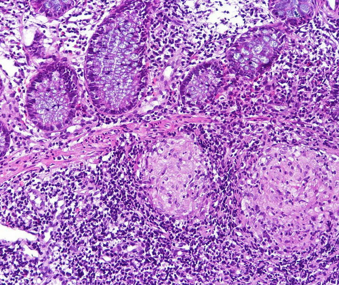 Crohn's chronic colitis, biopsy specimen. Credit: CoRus13