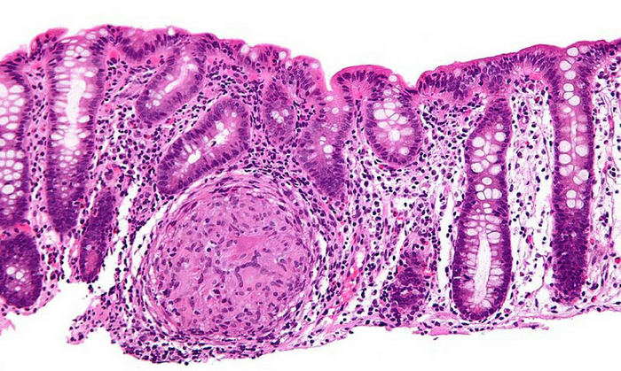 High magnification micrograph of Crohn's disease in the colon. Credit: Wikimedia user Nephron