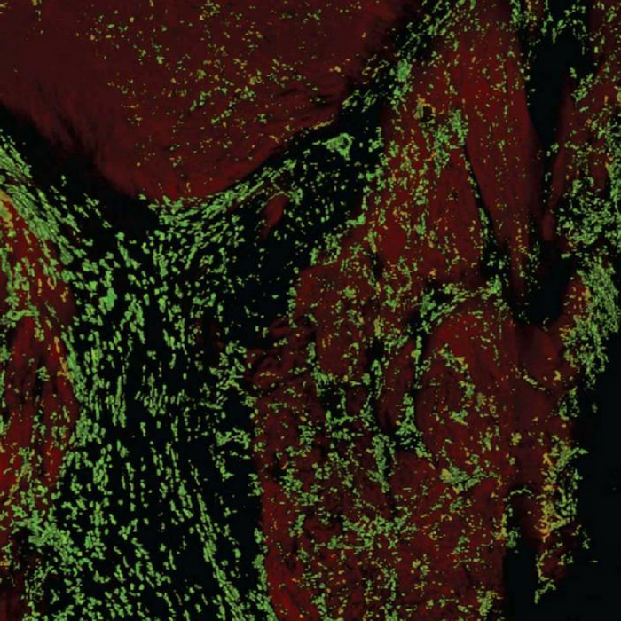 A volumetric reconstruction of a human atrioventricular node. Cardiomyocytes (red) appear densely interspersed with macrophages (green). Credit: Maarten Hulsmans & Matthias Nahrendorf