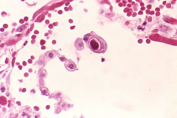 Cytomegalovirus infection of a lung pneumocyte./ Credit: CDC Public Health Image Library