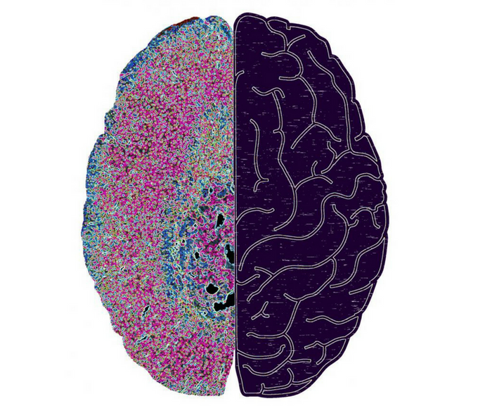 New interface between adrenal (left) and brain (right). A symbolic image for a newly discovered pathway through which the central nervous system, using the hormone production in the adrenal gland, can lead to a disorder of the immune system with severe infections. Credit: Charité - Universitätsmedizin Berlin