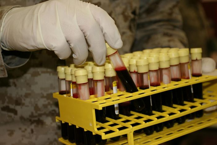 People with blood type O often get more severely ill from cholera than people of other blood types. Researchers from Washington University School of Medicine in St. Louis have found that cholera toxin activates a key signaling molecule more strongly in people with blood type O than type A, possibly leading to more severe symptoms. / Credit: USMC/Wikimedia Commons