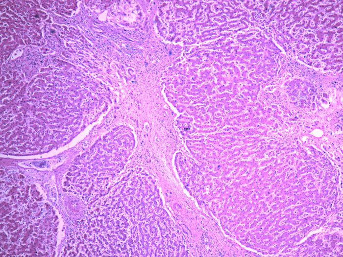 Damaged liver tissue due to cirrhosis | Image: Yale