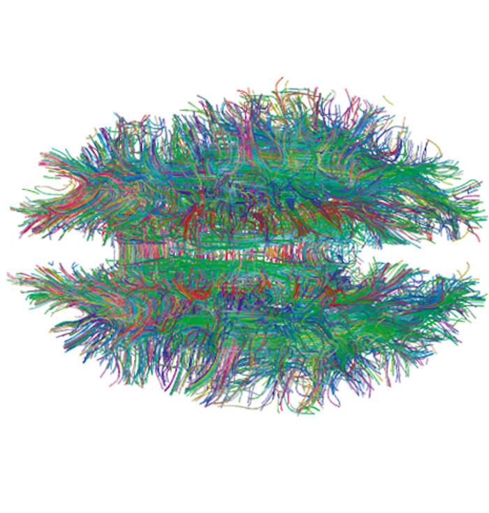 In this figure from Gigandet X et al. (2008) PLoS ONE, white matter connections in the brain are visualized by diffusion MRI Tractography