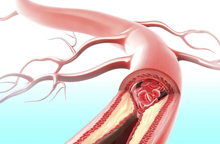 Plaque buildup blocking blood flow