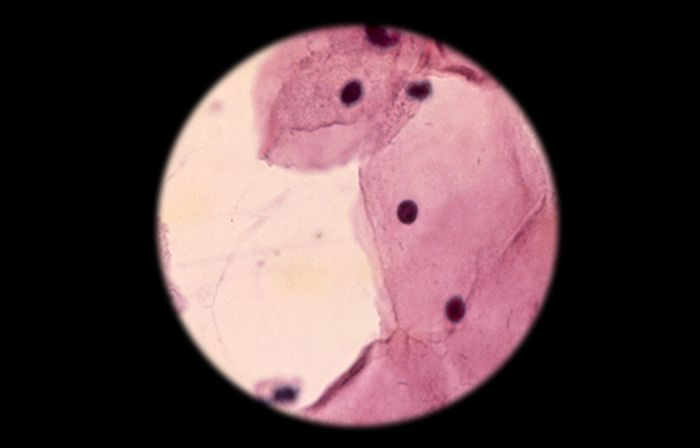 A cytologic smear under the microscope / Credit: QMUL