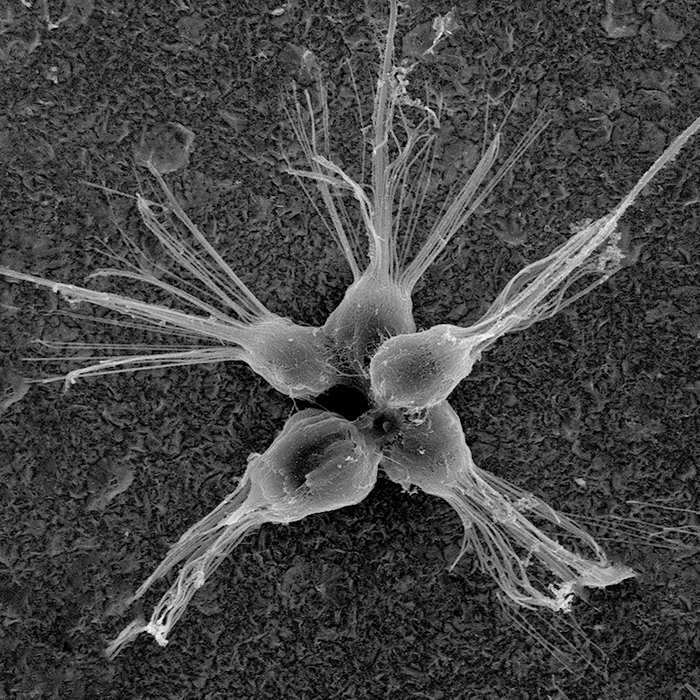 A choanoflagellate rosette colony