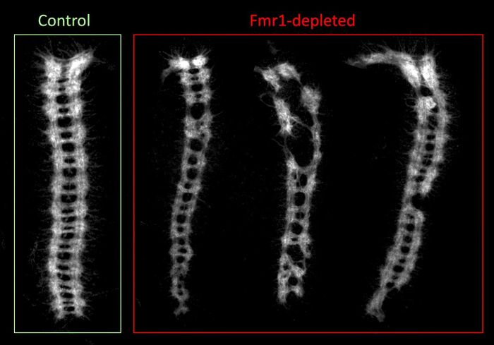This image shows an example of defects in the development of the embryonic central nervous system in stored eggs that lacked the Fmr1 gene -- stored being the key word, since un-stored eggs showed normal development. Analogous to the spinal cord, the ladder-like ventral nerve cords on the right are from stored eggs lacking in Fmr1. The image on the left is a normal ventral nerve cord with functioning Fmr1. / Credit:  Courtesy of Ethan Greenblatt and Allan Spradling.