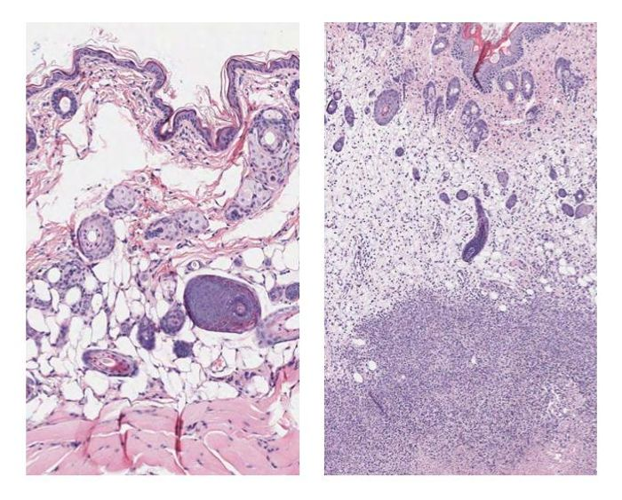 Tissue staining shows group A Streptococcus soft tissue infection at the cellular level. (L-R) Uninfected mouse tissue and mouse tissue 48 hours after infection. The dense dots indicate immune system cells that swarmed in to attempt to control the infection. The densest purple staining toward the bottom is necrotic tissue surrounding bacteria. / Credit: Joshua Leiberman, University of Maryland Baltimore