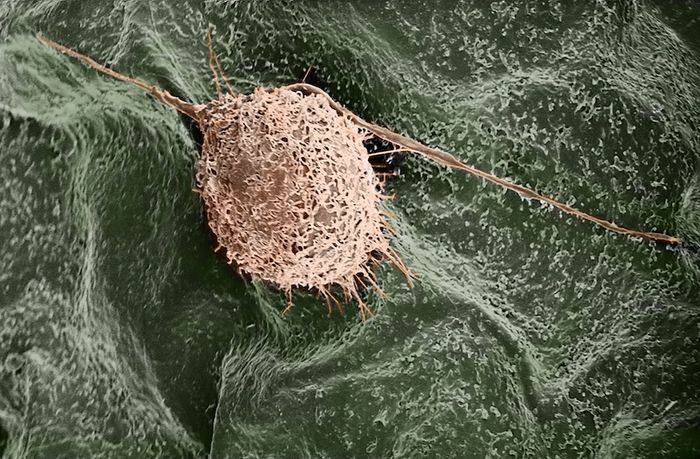 A human fibroblast cell finds a home on a lilac leaf. / Credit: Gianluca Fontana