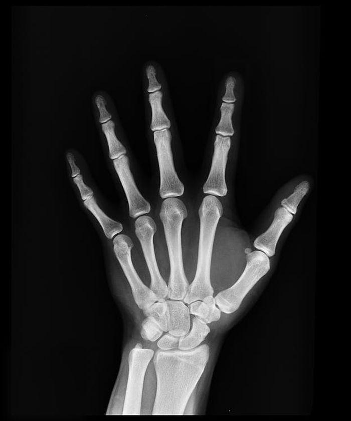 hand X-ray, credit: public domain