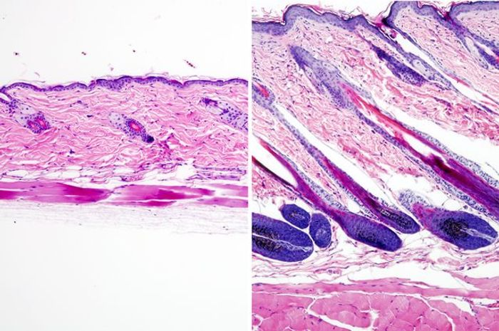 Untreated mouse skin showing no hair growth, left, compared to mouse skin treated with the drug UK5099 showing hair growth. / Credit: UCLA Broad Stem Cell Center/Nature Cell Biology