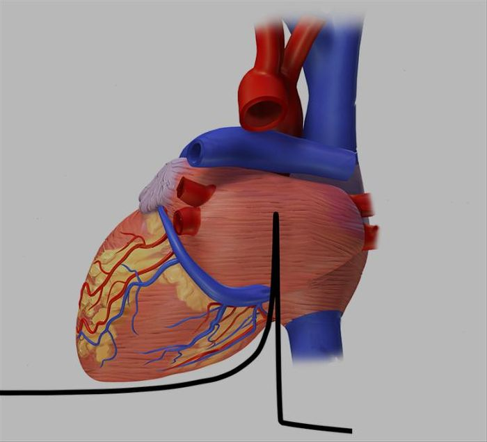 The treatment of cardiac arrhythmia with ions is studied at GSI. Therefore certain areas of the cardiac tissue are irradiated. In the area of the Bragg peak (black) ions deposit their energy and the tissue becomes deserted. Credit: Blausen.com staff. CC BY 3.0, remix by GSI