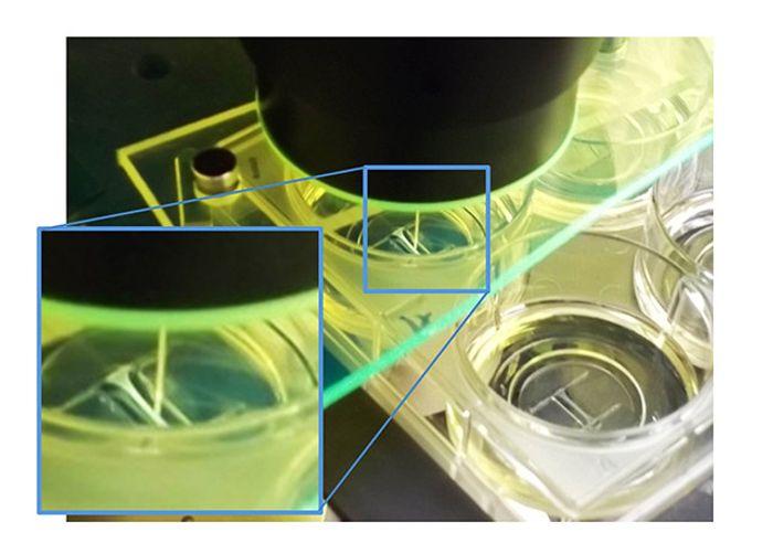 I-Wire device with cardiac fiber shown in magnification window. (Credit: VIIBRE/Vanderbilt)