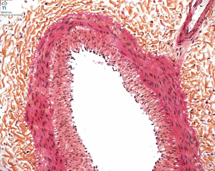 Intimal fibrosis in pulmonary artery. Source: Humpath.com