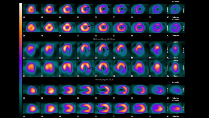 SPECT images of a myocardial perfusion scan (WikiMedia)