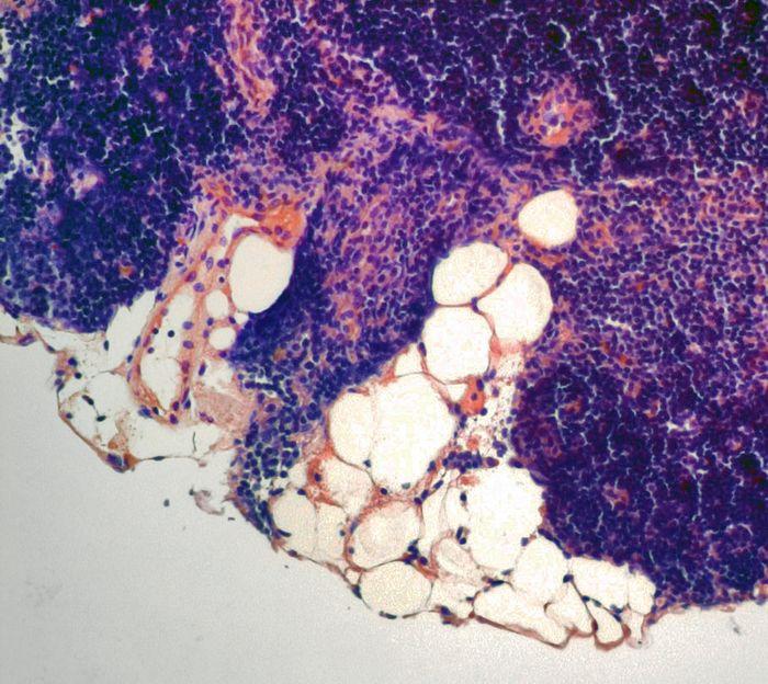 Life-extending hormone bolsters the body's immune function.