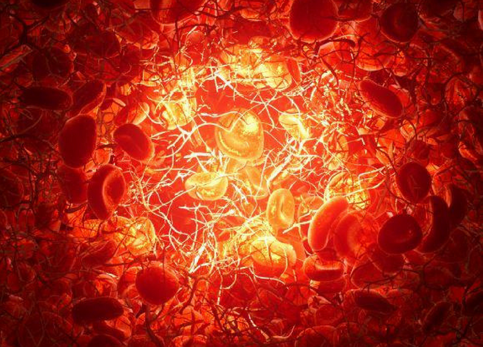 Light introduced through an optical fiber can determine whether a patient's blood is coagulating by measuring the vibration of red blood cells. Credit: Andrii Pshenychnyi