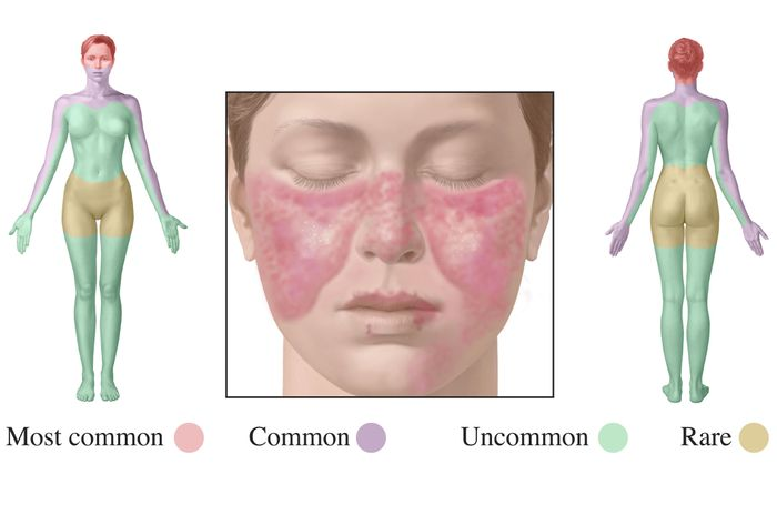 Visualizing the effects of lupus