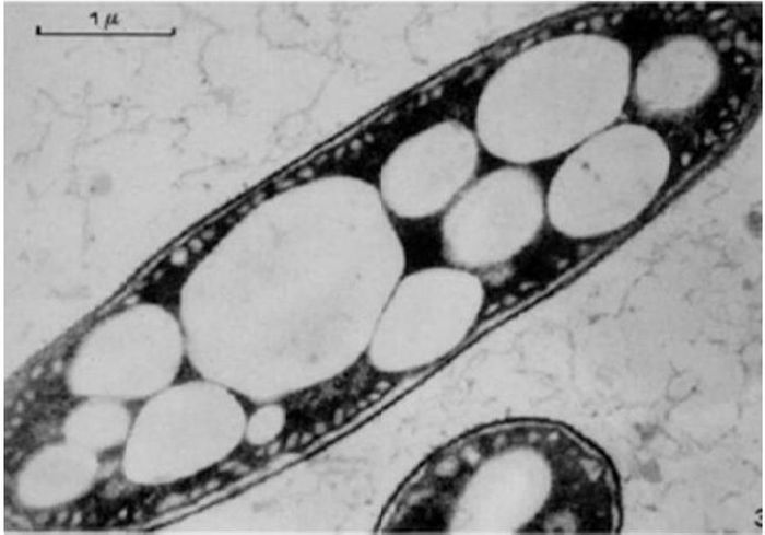 "TEM image of a bacteria cell that has PHBV polymer ""bubbles"" (UNT Digital Library)"