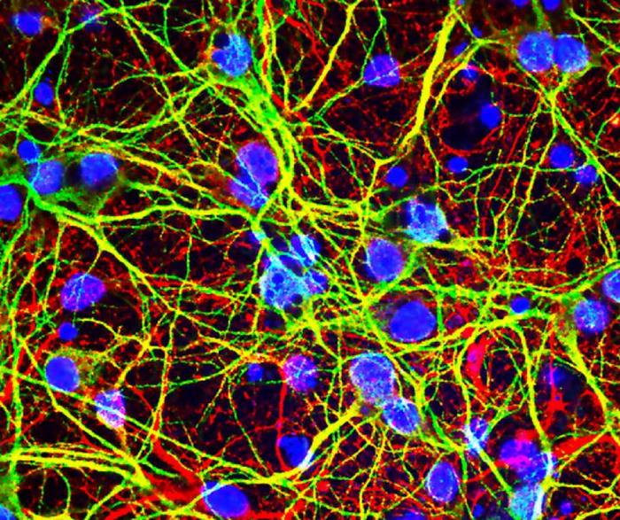 West Nile virus-infected brain neurons. Credit: Brian Daniels