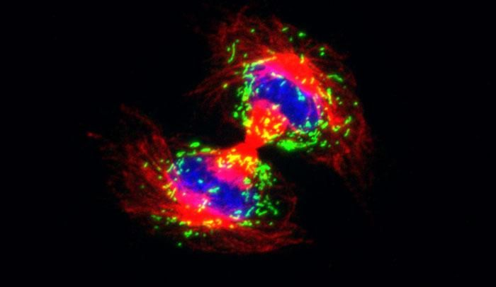 In a dividing cell (above), tiny organs called peroxisomes (green) are evenly distributed in distinctive arcs. In cells lacking the protein Pex11b, peroxisomes are no longer allotted equally. / Credit: Laboratory of Mammalian Cell Biology and Development at The Rockefeller University/Science