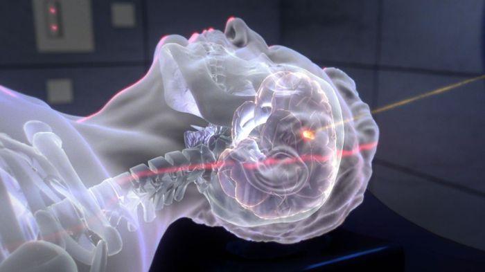 Brain tumor proton therapy. Credit: Credit: HZDR / AIFilm