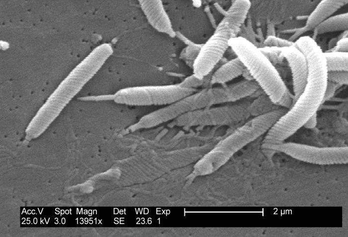 A bacterium that is closely related to Helicobacter / Credit: CDC/Dr. Patricia Fields, Dr. Collette Fitzgerald