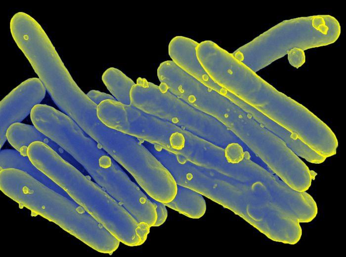 Mycobacterium leprae causes leprosy