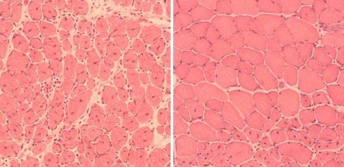(Left) Impaired muscle repair in aged mice; (Right) Improved muscle regeneration in aged mice subjected to reprogramming. / Credit: Courtesy of Juan Carlos Izpisua Belmonte Lab /Salk Institute