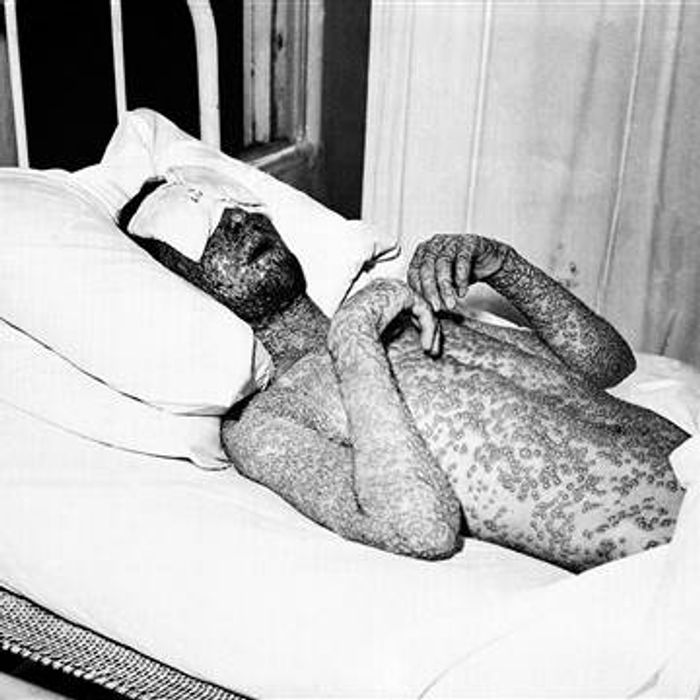 An old photograph of a smallpox patient